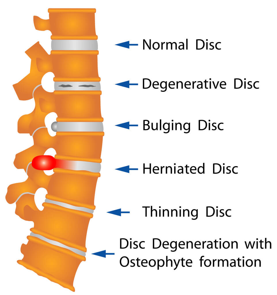 Herniated Disk – what is it and how can I fix it?